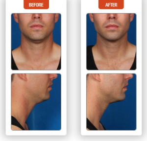 Male Before and After Kybella Treatment