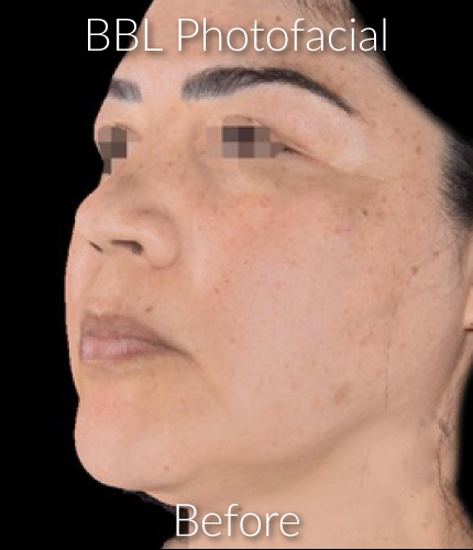 Before-Photofacial