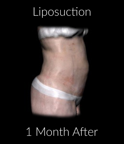 After-Liposuction 1