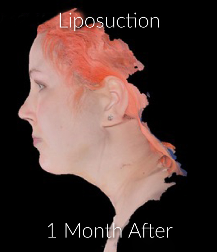 After-Liposuction 2