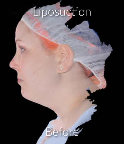 Before-Liposuction 2
