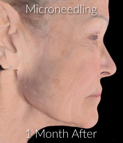 After-Microneedling