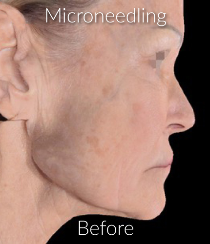 Before-Microneedling