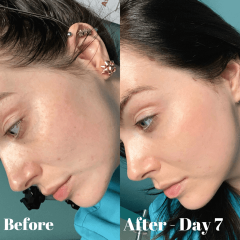 Perfect Derma Before and After