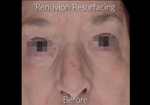Before-Renuvion Resurfacing