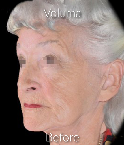 Before-Voluma