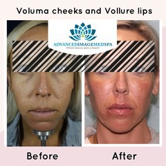 Juvederm Voluma XC Before and After