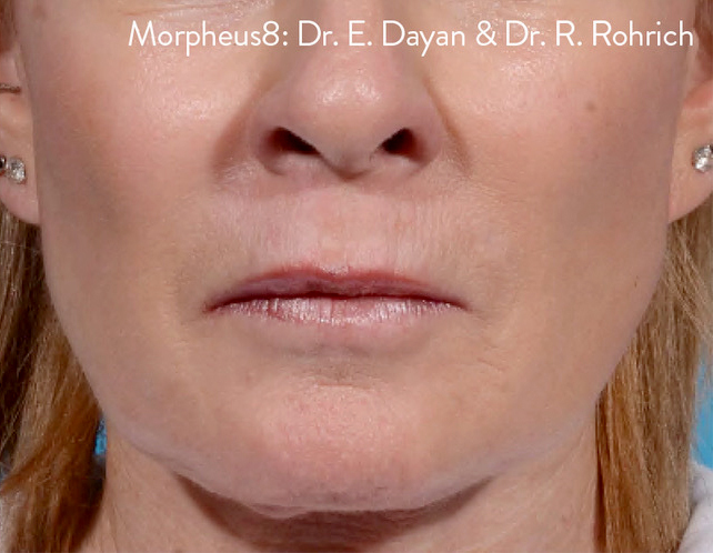 After-RF Micro-Needling