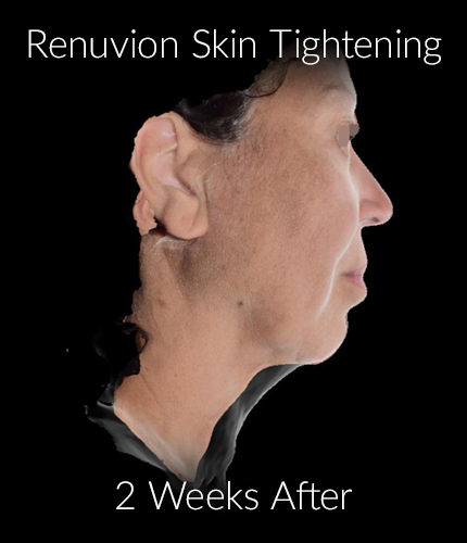 After-Renuvion Skin Tightening
