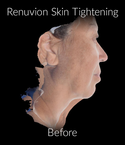 Before-Renuvion Skin Tightening
