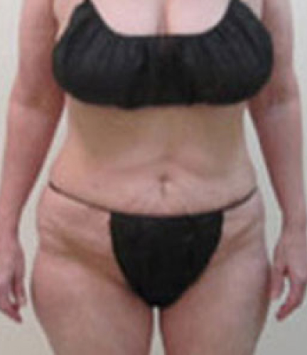 After-Liposuction