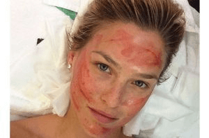 Bar Refaeli After Vampire Facial AZ