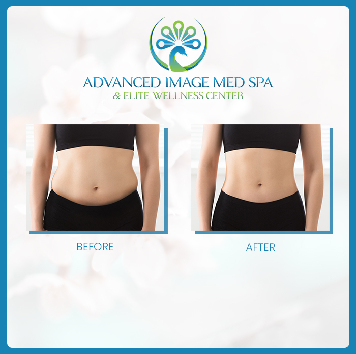 Before and After BodyTone - Female