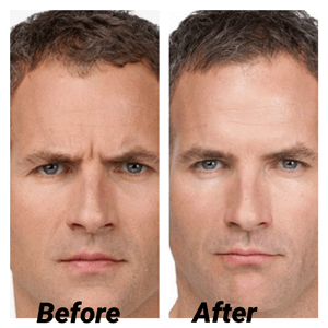 Botox for Boys - Before and After