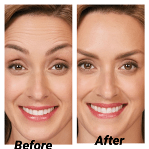 Botox for Girls - Before and After