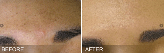 HydraFacial MD Treatment - Before and After