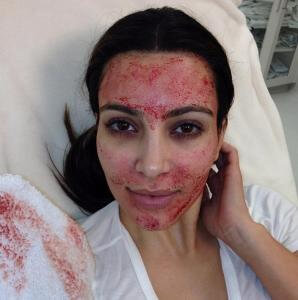 Kardashian After Vampire Facial