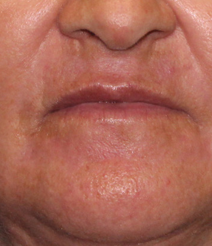 After-Renuvion Resurfacing